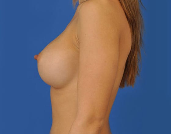 meridian-breast-augmentation-after