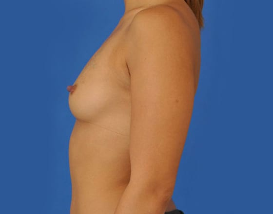 meridian-breast-augmentation-before