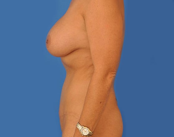 meridian-liposuction-after