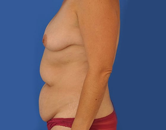 meridian-liposuction-before