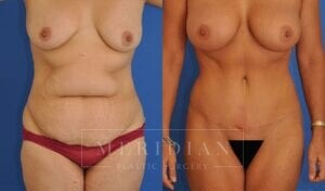 tjelmeland-meridian-austin-abdominoplasty-patient-1-1