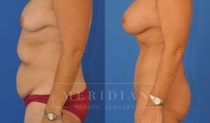tjelmeland-meridian-austin-abdominoplasty-patient-1-2