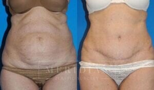 tjelmeland-meridian-austin-abdominoplasty-patient-10-1