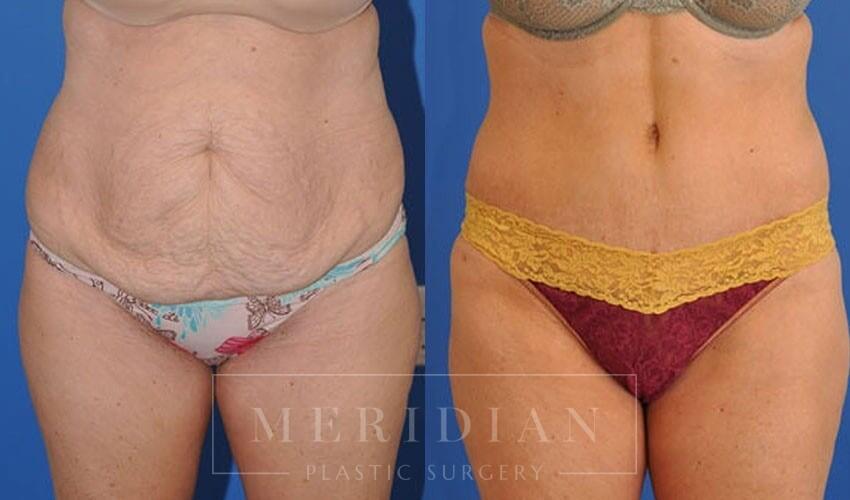 tjelmeland-meridian-austin-abdominoplasty-patient-2-1