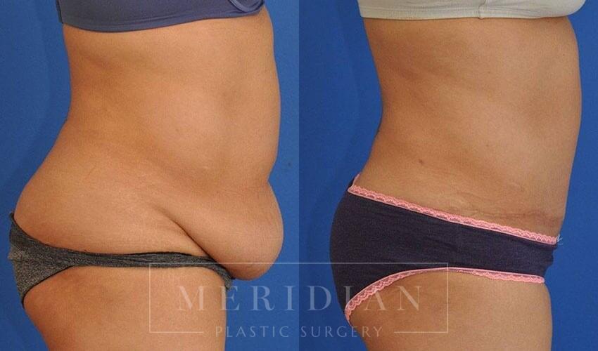 tjelmeland-meridian-austin-abdominoplasty-patient-23-3