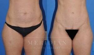 tjelmeland-meridian-austin-abdominoplasty-patient-3-1