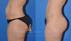 tjelmeland-meridian-austin-abdominoplasty-patient-3-2