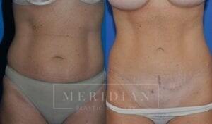 tjelmeland-meridian-austin-abdominoplasty-patient-4-1
