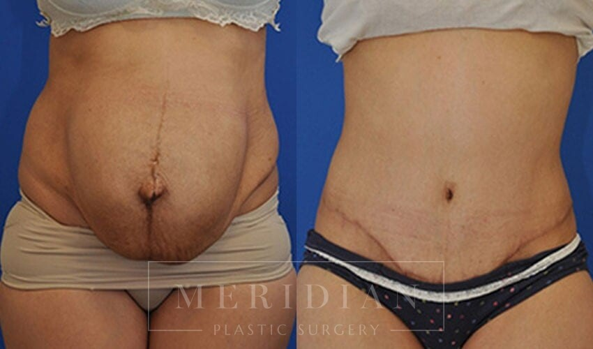 tjelmeland-meridian-austin-abdominoplasty-patient-6-1