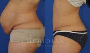 tjelmeland-meridian-austin-abdominoplasty-patient-6-2