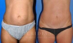 tjelmeland-meridian-austin-abdominoplasty-patient-7-1