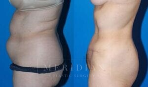 tjelmeland-meridian-austin-abdominoplasty-patient-8-2