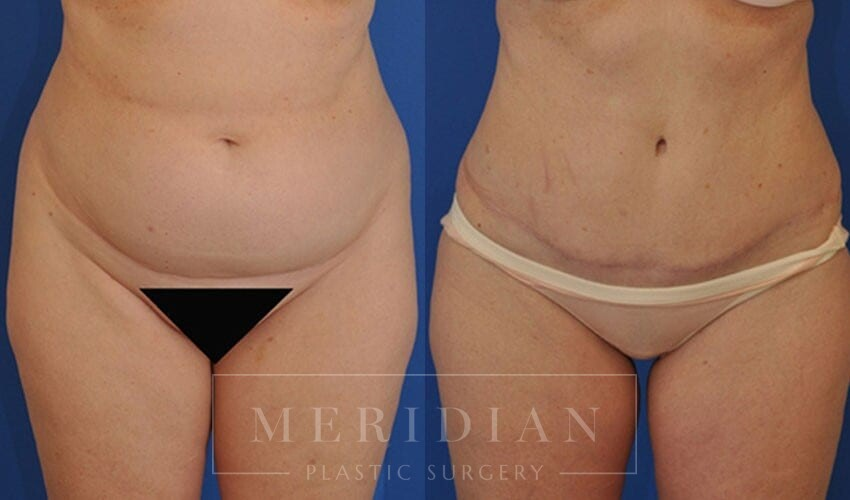 tjelmeland-meridian-austin-abdominoplasty-patient-9-1