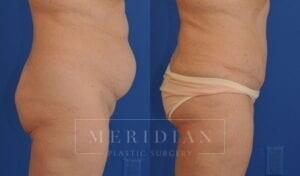 tjelmeland-meridian-austin-abdominoplasty-patient-9-2