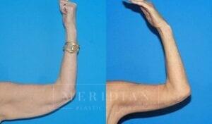 tjelmeland-meridian-austin-arm-lift-patient-1-1