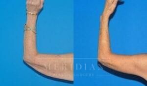 tjelmeland-meridian-austin-arm-lift-patient-1-2