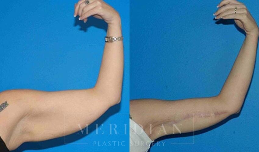 tjelmeland-meridian-austin-arm-lift-patient-2-1