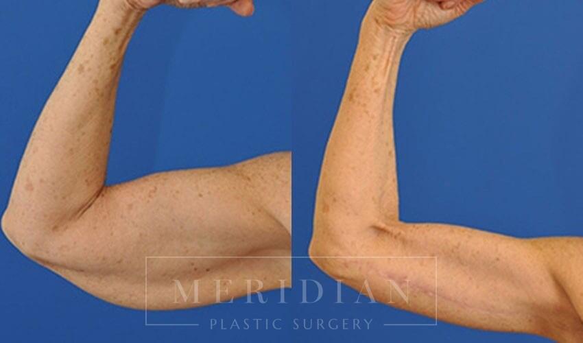 tjelmeland-meridian-austin-arm-lift-patient-3-1