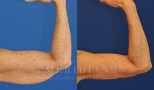 tjelmeland-meridian-austin-arm-lift-patient-3-2
