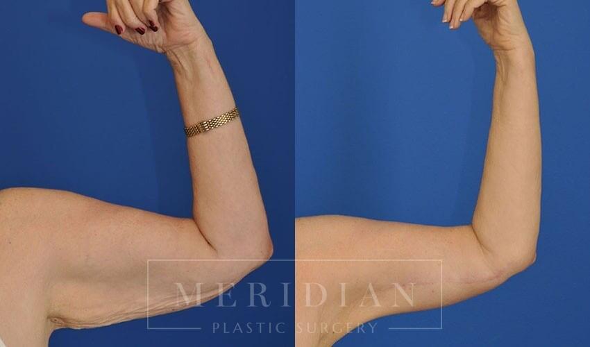 tjelmeland-meridian-austin-arm-lift-patient-4-1
