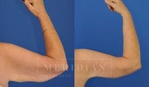 tjelmeland-meridian-austin-arm-lift-patient-4-2