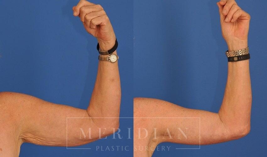 tjelmeland-meridian-austin-arm-lift-patient-5-1