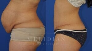 tjelmeland-meridian-austin-body-contouring-patient-1-2