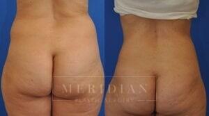tjelmeland-meridian-austin-body-contouring-patient-1-3