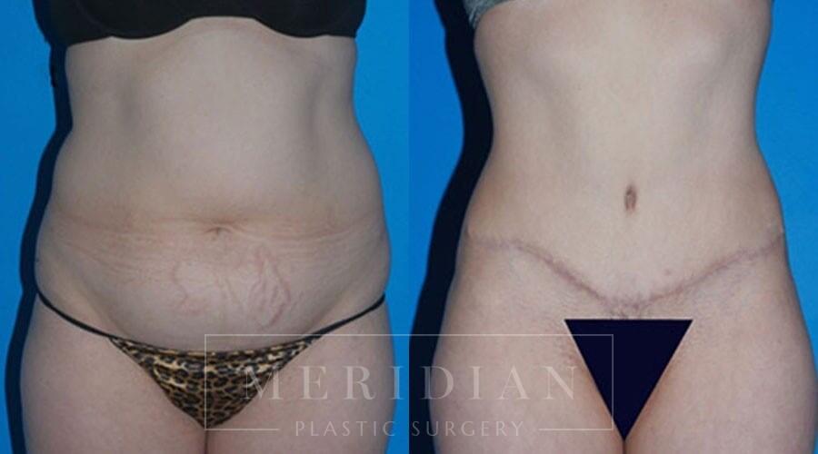 tjelmeland-meridian-austin-body-contouring-patient-10-1