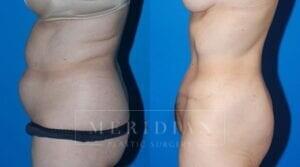 tjelmeland-meridian-austin-body-contouring-patient-11-2