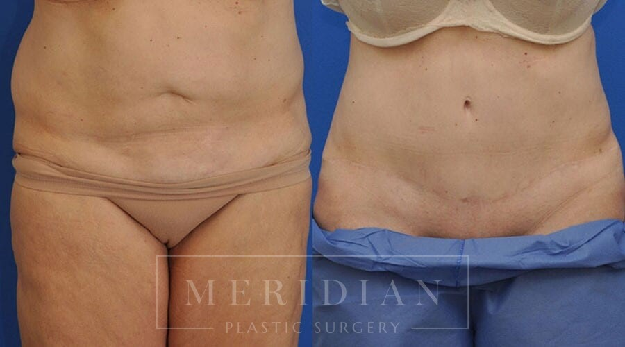 tjelmeland-meridian-austin-body-contouring-patient-13-1