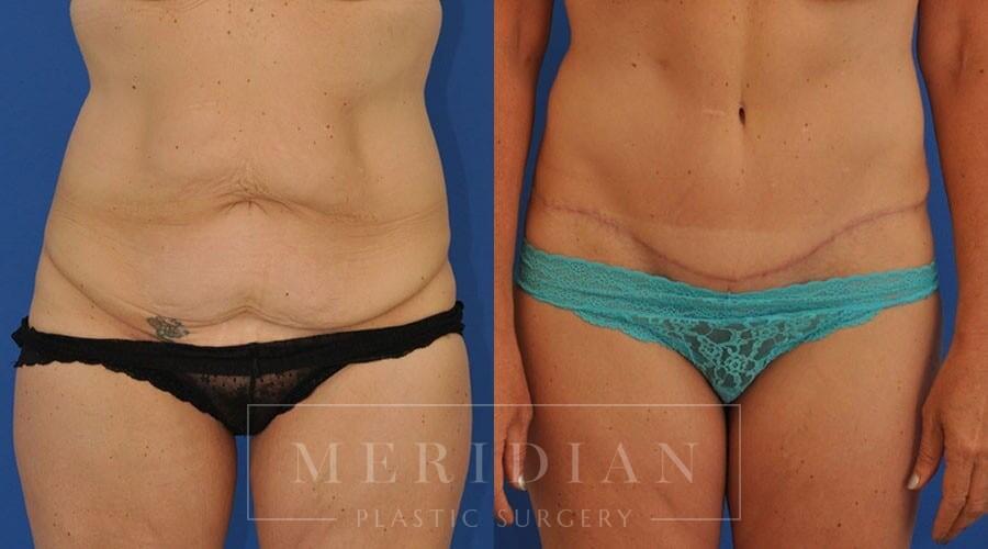 tjelmeland-meridian-austin-body-contouring-patient-14-1