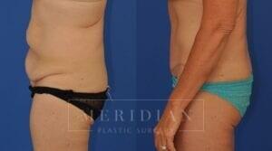 tjelmeland-meridian-austin-body-contouring-patient-14-2