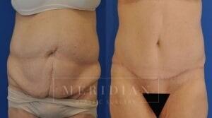 tjelmeland-meridian-austin-body-contouring-patient-15-1
