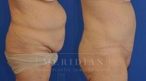 tjelmeland-meridian-austin-body-contouring-patient-15-2