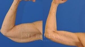 tjelmeland-meridian-austin-body-contouring-patient-16-1
