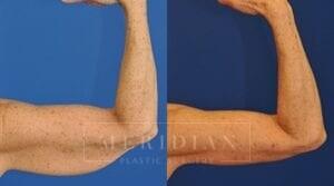 tjelmeland-meridian-austin-body-contouring-patient-16-2