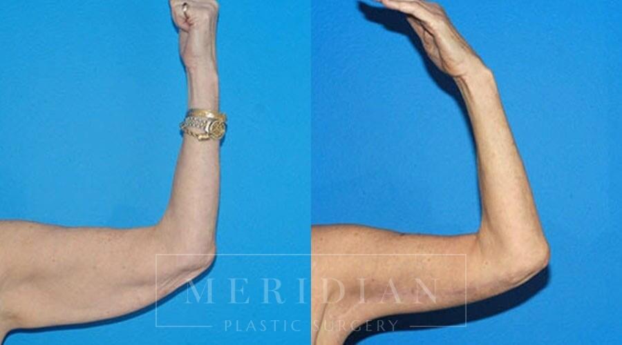 tjelmeland-meridian-austin-body-contouring-patient-17-1