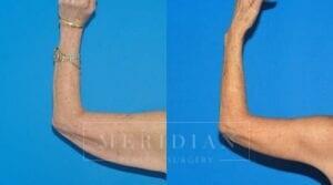 tjelmeland-meridian-austin-body-contouring-patient-17-2