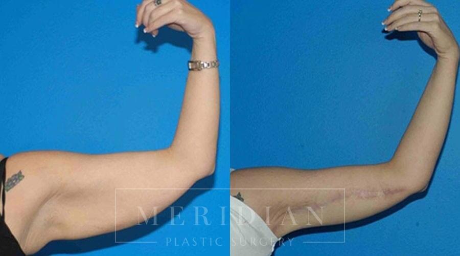 tjelmeland-meridian-austin-body-contouring-patient-18-1