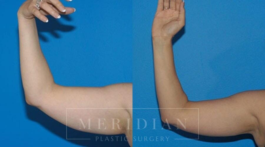 tjelmeland-meridian-austin-body-contouring-patient-19-1