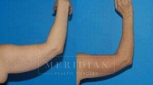 tjelmeland-meridian-austin-body-contouring-patient-19-2