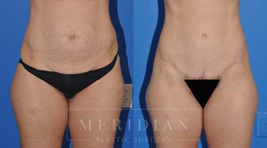 tjelmeland-meridian-austin-body-contouring-patient-2-1
