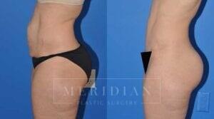 tjelmeland-meridian-austin-body-contouring-patient-2-2