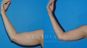 tjelmeland-meridian-austin-body-contouring-patient-20-1