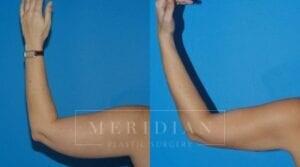 tjelmeland-meridian-austin-body-contouring-patient-20-2