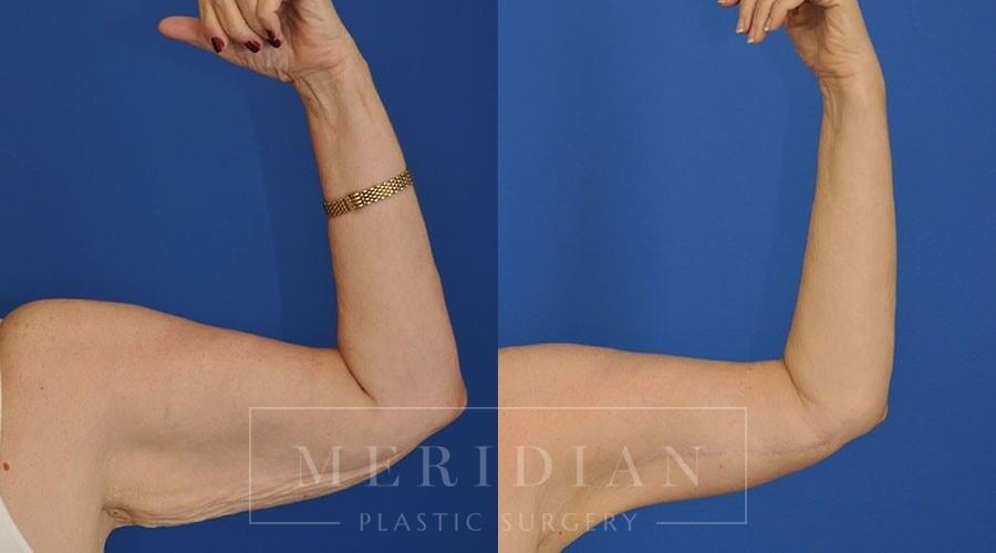 tjelmeland-meridian-austin-body-contouring-patient-21-1