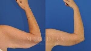 tjelmeland-meridian-austin-body-contouring-patient-21-2