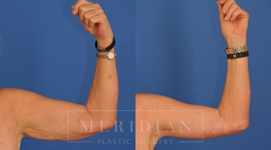 tjelmeland-meridian-austin-body-contouring-patient-22-1