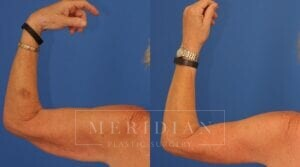 tjelmeland-meridian-austin-body-contouring-patient-22-2